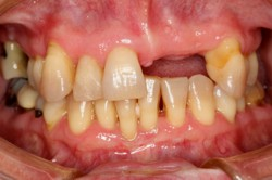 Boomers Perio Gum Disease Tissue Loss