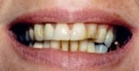 Before Photo Dental Implants