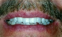 Successful Implantology After Picture